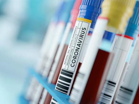 У Сарненському районі – 16 нових підтверджених випадків коронавірусу